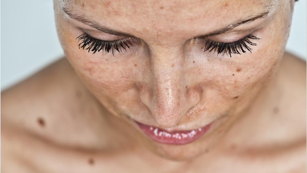 efectos del acido glicolico en la cara